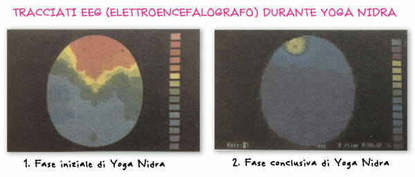 Yoga-Nidra-tracciati-EEG